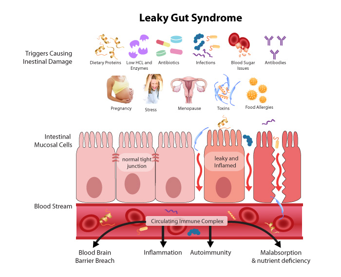 Why Your Gut is Making You Sick and What to Do About It // deliciousobsessions.com