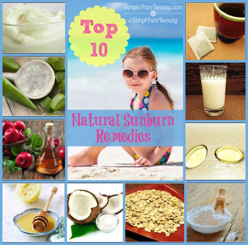 Top 10 Natural Home Remedies for Sunburn Itch and Pain - Delicious ...