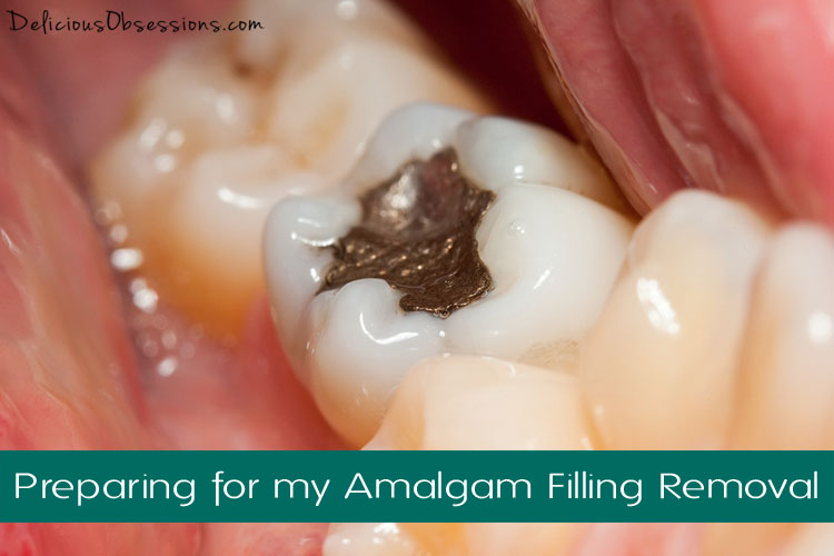 Preparing for My Amalgam Filling Removal // deliciousobsessions.com