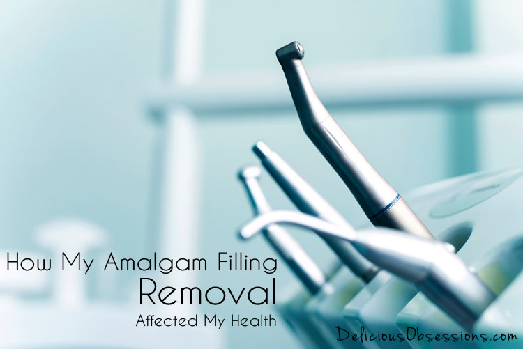 How My Amalgam Filling Removal Affected My Health